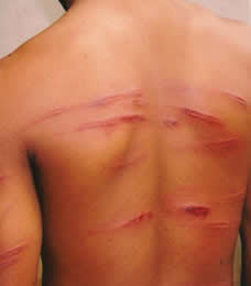Image result for TEACHER BRUTALIZING STUDENTS IN NIGERIA, ANY PUNISHMENT