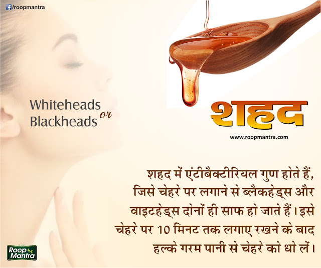 Remove Whiteheads & Blackheads