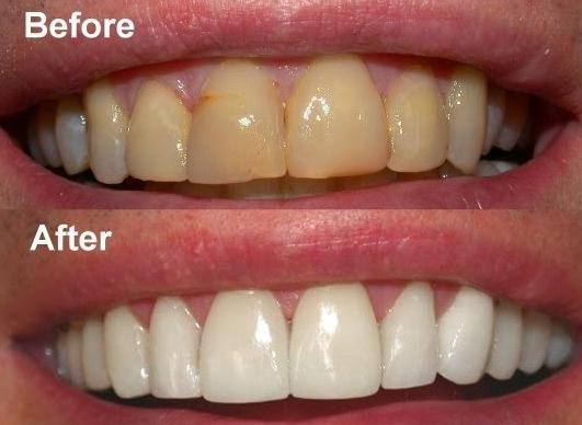 Penyebab Dan Cara Mengatasi Gigi Kuning