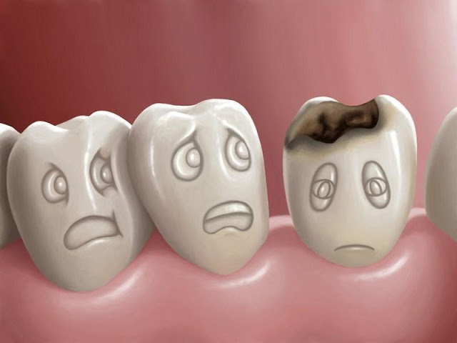 como evitar a cárie em criancas dra kenia clinica odontologia mr clean