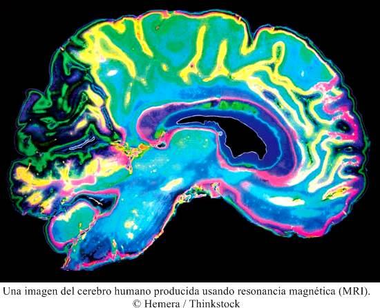 Anatomía del cerebro