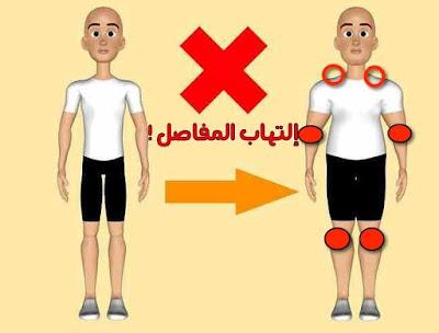 فعاله علاج التهاب المفاصل
