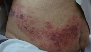 Berapa Harga Obat Herpes Gangjie Ghosiah Di Keerom Waris