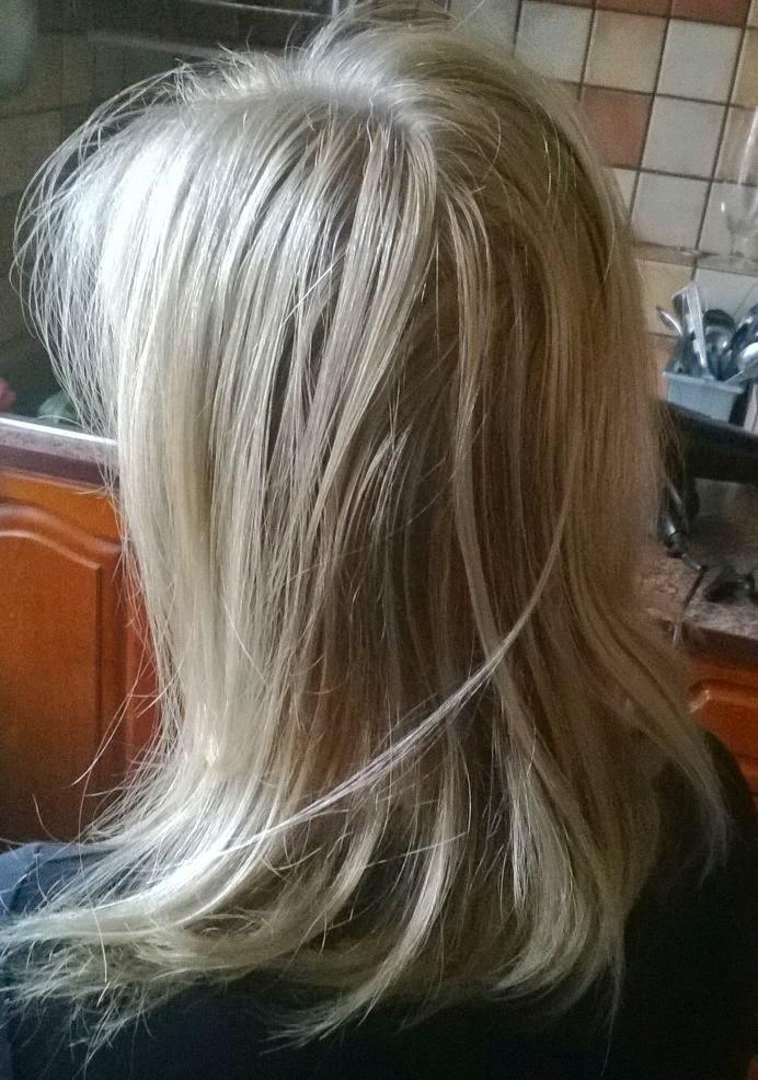 Efekty prawidłowej diagnostyki wypadania włosów a najczęściej popełniane błędy