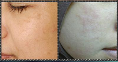 Tona kulit tidak sekata