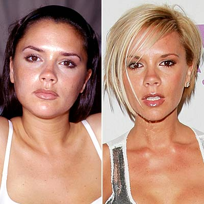 Celebrity Plastic Surgery Before And After - FunnyMadWorld