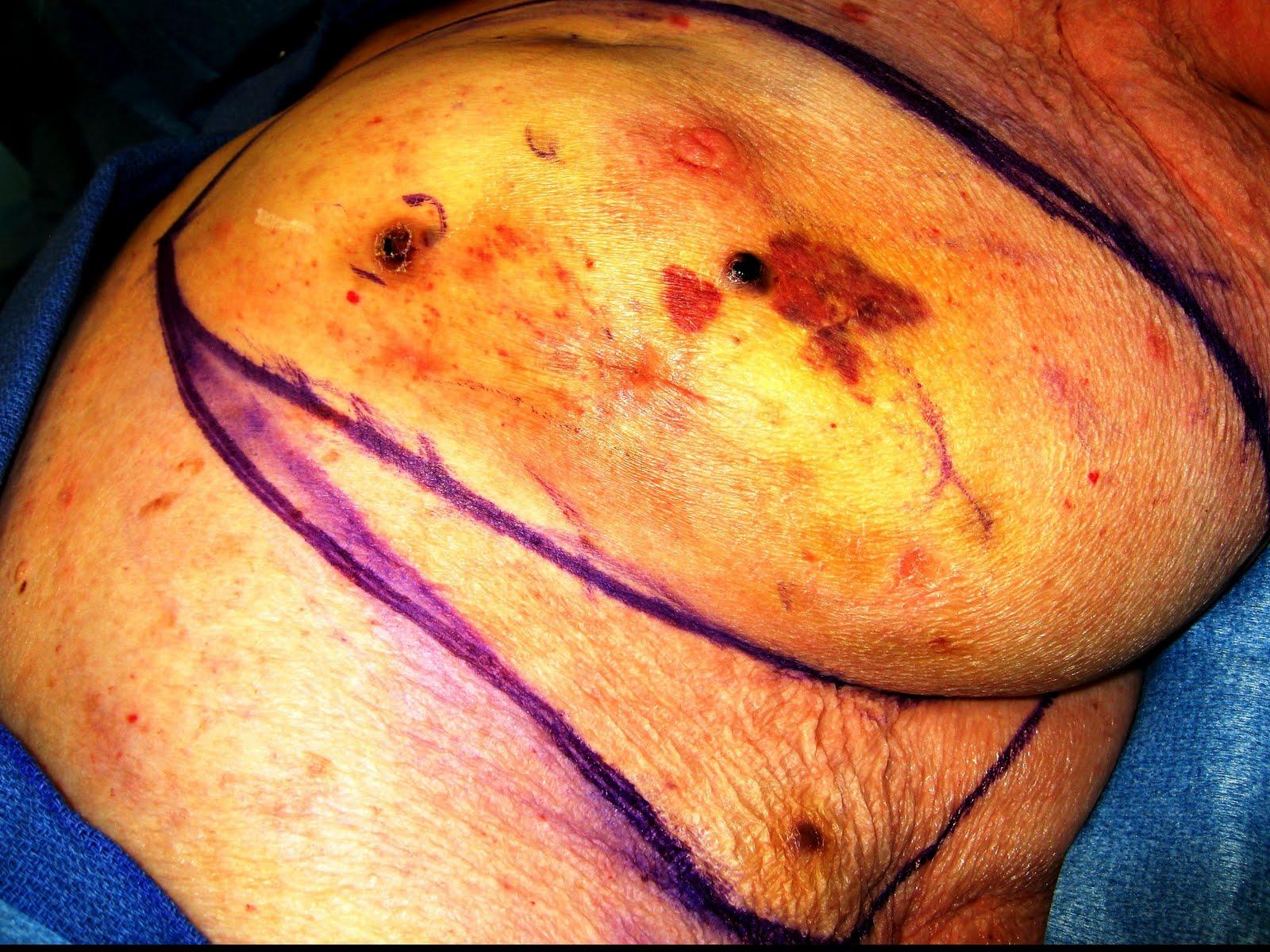 angiosarcoma breast cancer jpg 853x1280