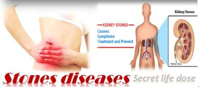 What should the food take during the disease? secretlifedose