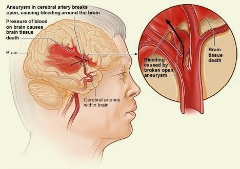 Cara Mengobati Penyakit Stroke Secara Tradisional