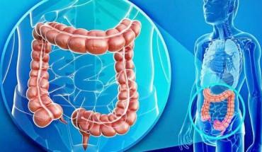 4 Tips Ampuh Untuk Memcegah Kanker Usus Besar...(Ku.3)
