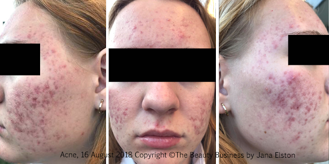 Acne progressive photos 16 August 2018 The Beauty Business