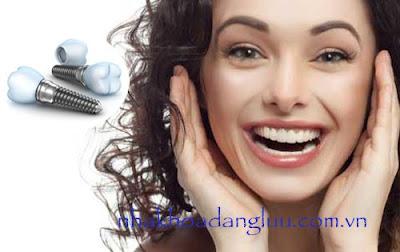 Cấy ghép răng Implant mất thời gian bao lâu?
