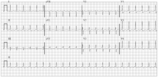 ECG of Atrial Flutter with 2 is to 1 conduction