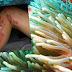Εικόνες σοκ: Επίθεση θαλάσσιας ανεμώνης σε παιδί στη Σαλαμίνα!