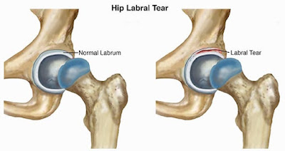 Hip Injury: Acetabular Labral Tears - El Paso Chiropractor