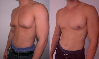 Cómo eliminar los pechos de hombre en 30 días Muy