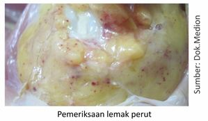 pemeriksaan lemak perut pada unggas