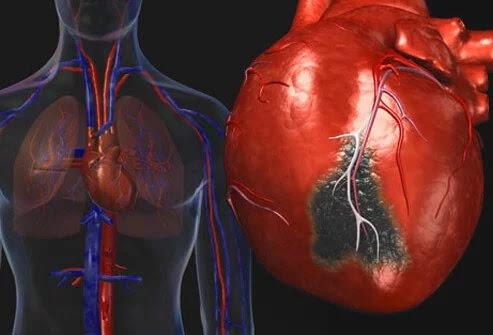 30 Hal yang Harus Kamu Ketahui Tentang Penyakit Jantung