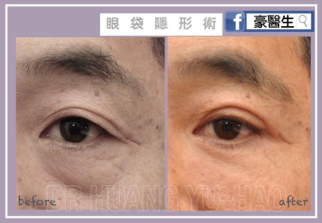 眼袋消除隱形手術-外開式