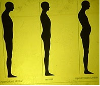 Semiología postural