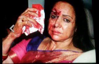 hema malini face full of blood