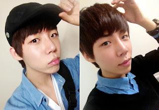 5 bulan sesudah operasi plastik mata, operasi plastik hidung, anti aging di Wonjin