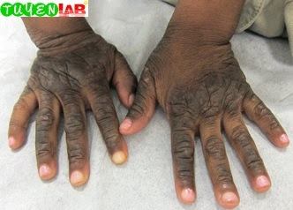 Fig. 5.11 Chronic atopic dermatitis