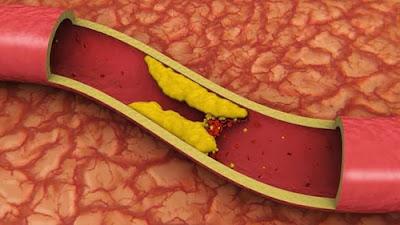 cara menurunkan kolestrol