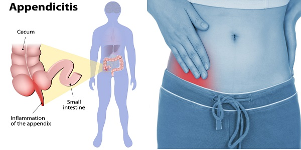 Chronic Stomach Pain After Eating Related Protein Shake Kids