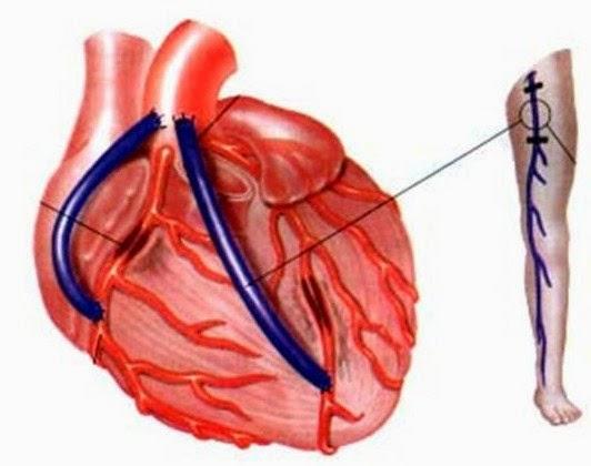 A safena pode ser utilizada como substituto de várias artérias, inclusive as artérias do coração (coronárias)