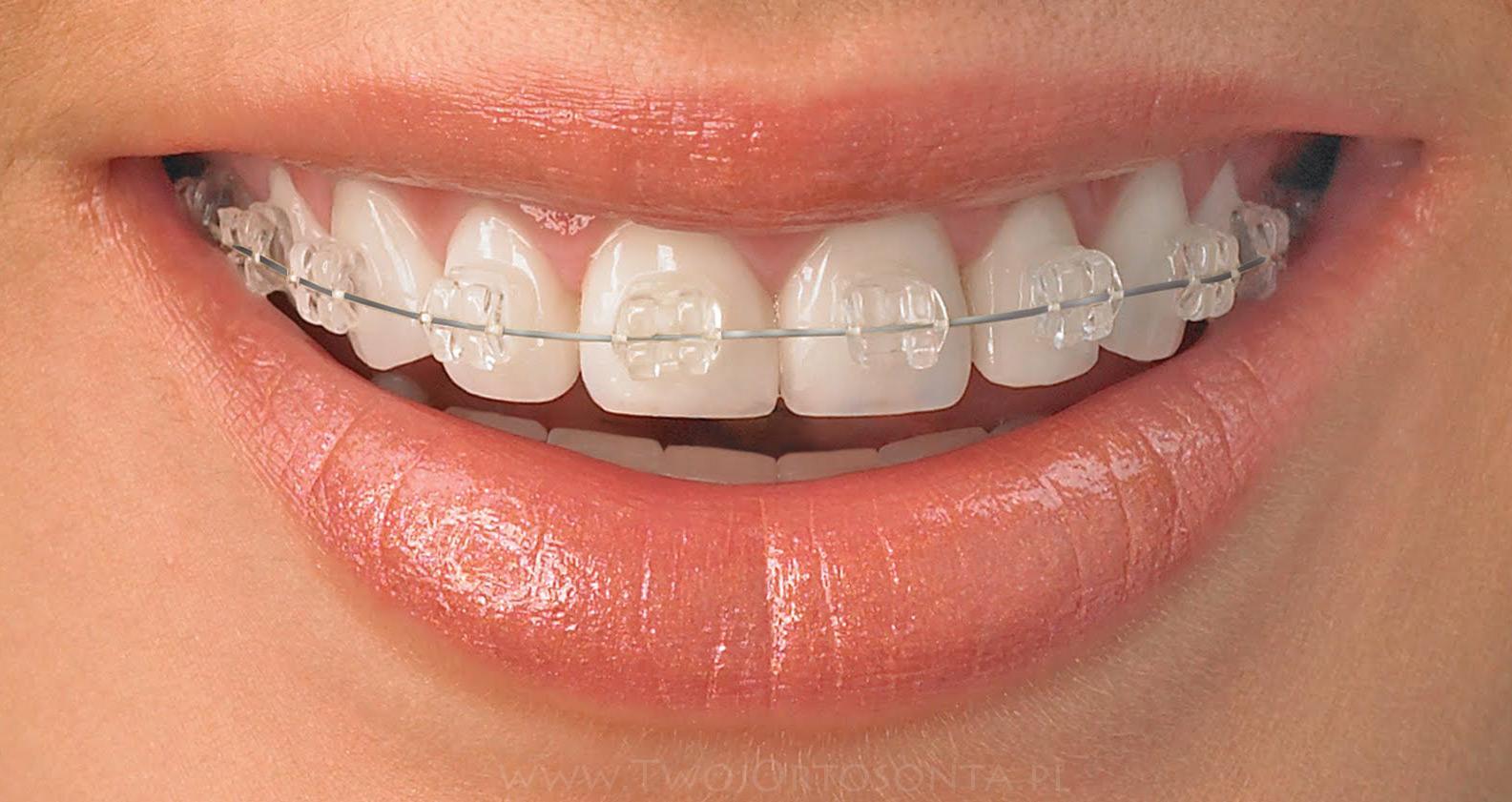 Randki po aparatach ortodontycznych