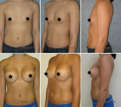 Antes e Depois Mamoplastia de Aumento