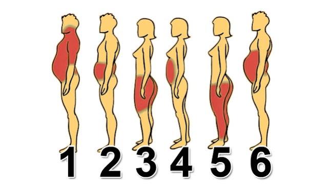 Nga cili lloj obeziteti vuani? Të luftojmë specifikisht çdo lloj trashjeje