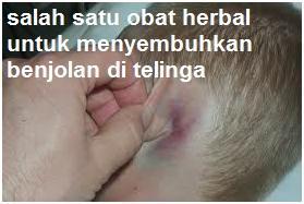 salah satu obat herbal untuk menyembuhkan benjolan di telinga
