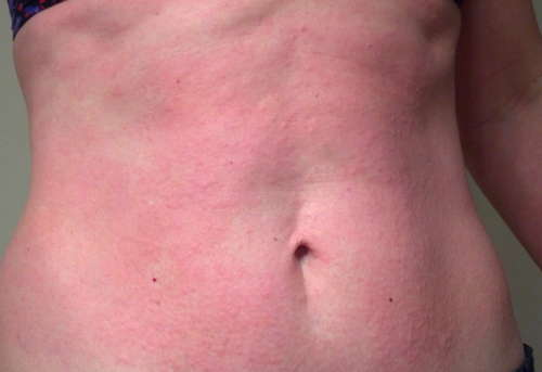 Anxiety Rash Pictures | Medical Pictures and Images ...