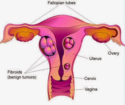 Chennai Fibroid Specialty Treatment Clinic, Velachery, Chennai, Tamil nadu, India, dr.sendhil kumar panruti,