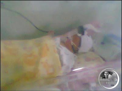 FOTO : Anak Saya di Ruang NICCU RS Efarina Etaham Purwakarta