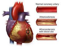 Makanan untuk Mencegah & Mengobati Penyakit Arteri Koroner