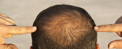 rambut rontok botak