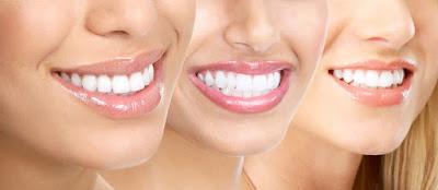 Cara Memutihkan Gigi Secara Cepat dan Alami