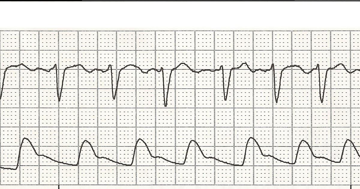 Float Nurse: EKG Rhythm Strips 51