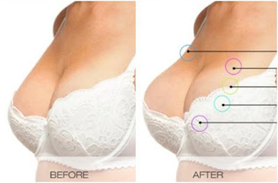 Testimoni Vienna Breast Cream Original