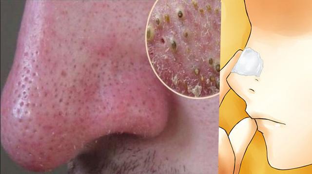 unta esto en tu nariz y eliminará los puntos negros en 5 minutos