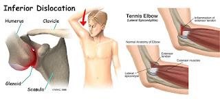 Cara mengatasi lutut bengkak karena asam urat