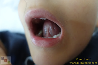 Lingual frenectomy - Tongue tie release surgery - Bloodless and bladeless lingual frenectomy