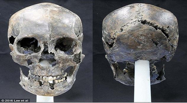 Παράξενο επίμηκες κρανίο ανακάλυψαν αρχαιολόγοι στην Κορέα