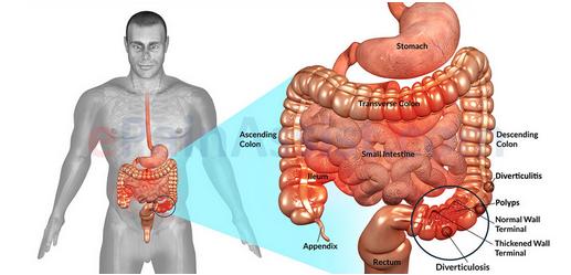 obat iritasi usus di apotik