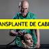 El transplante de cabeza cada vez más cerca