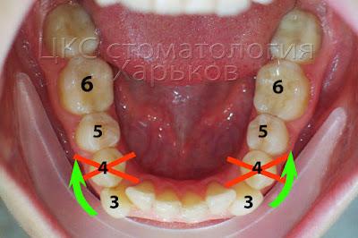План ортодонтических перемещений для нижнего зубного ряда