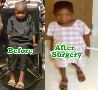 boy paralyzed boko haram walks after surgery